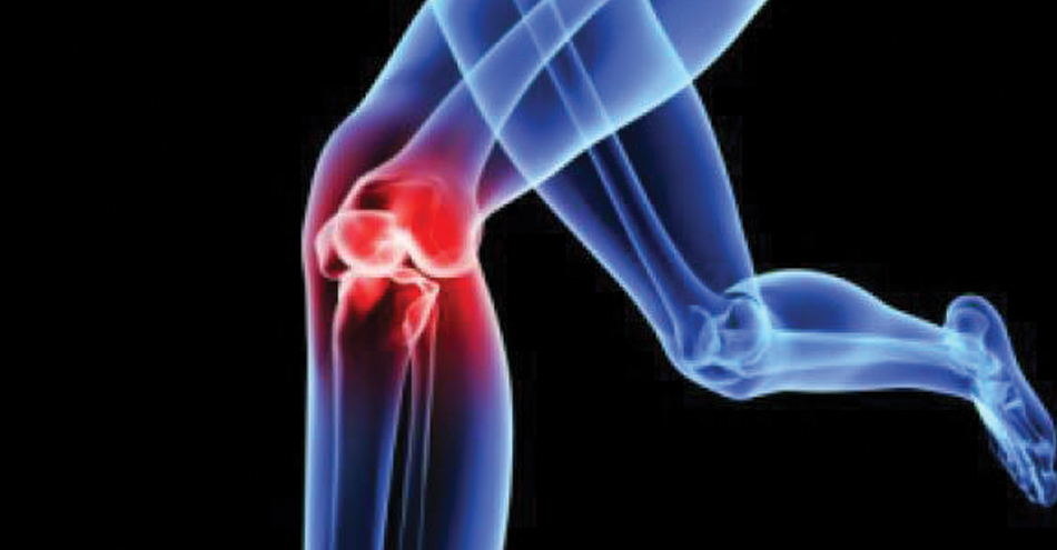 Simple computational models can help predict post-traumatic osteoarthritis