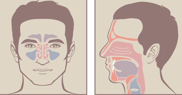 Learn How to Spot and Treat Sinusitis