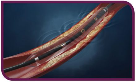 Shockwave Medical Announces CE Mark Approval of its Lithoplasty System