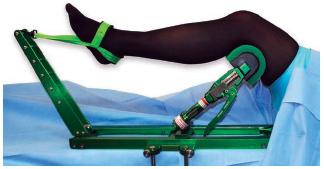 Accessory Allows Alternative Technique in Ankle Arthroscopies