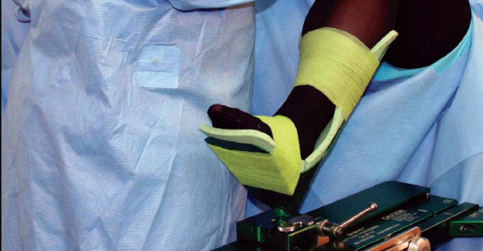 De Mayo V2 E Knee Positioner Benefits Unicompartmental Knee Surgery