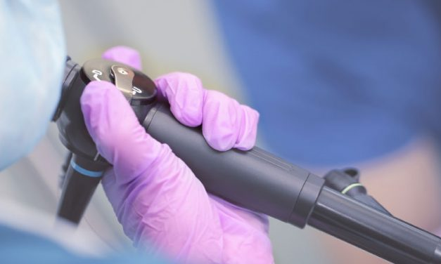 Market Analysis: Endoscopes