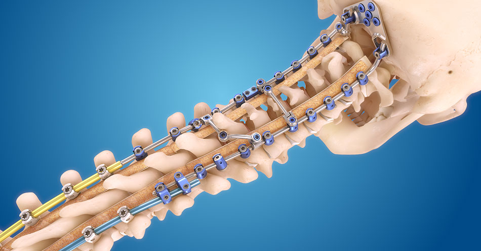 Medtronic Launches the Infinity OCT Spinal System
