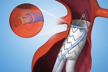 S.S. White Technologies Provides Custom Flexible Shaft for Medtronic EVAR Device