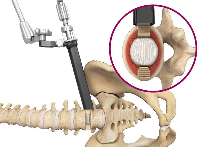 Spineology Announces Duo™ Angled Instrumentation System