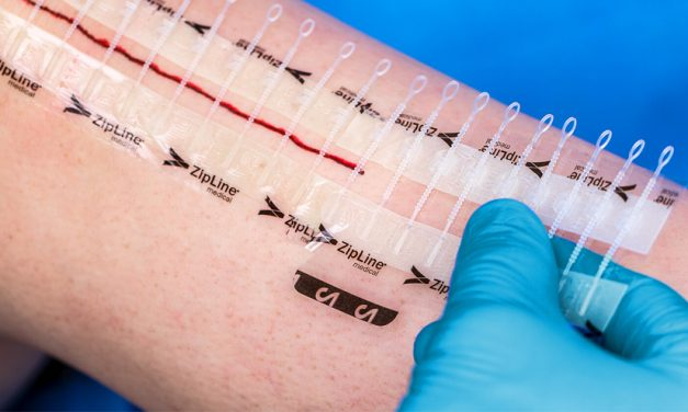 Zip Surgical Skin Closure Demonstrates Superior Health Economics and Clinical Outcomes Compared to Surgical Staples in Two Recently Published Clinical Studies