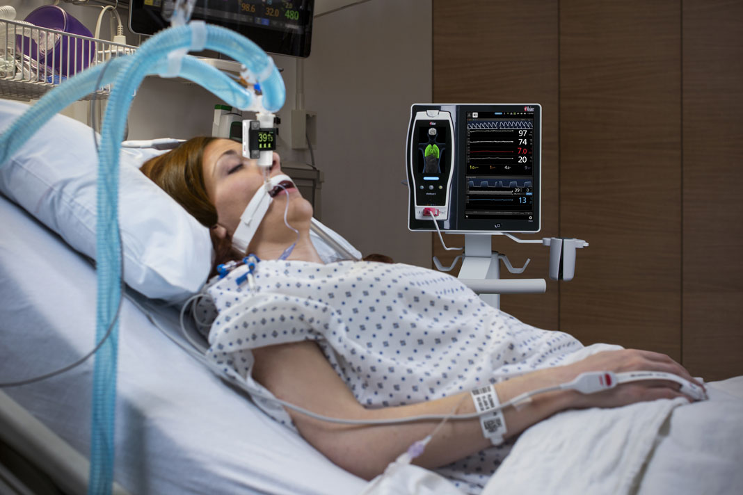 Masimo Announces CE Marking of Radius Capnography for the Root Patient Monitoring and Connectivity Platform