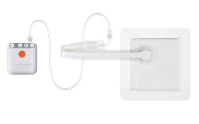 Smith+Nephew PICO Single Use Negative Pressure Wound Therapy
