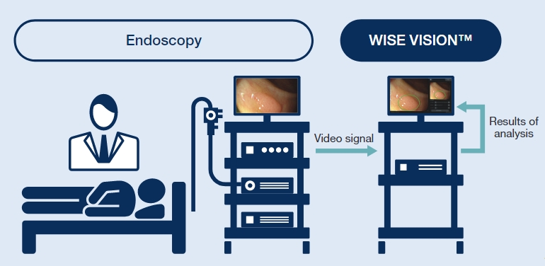 NEC Releases 'WISE VISION Endoscopy' in Europe and Japan
