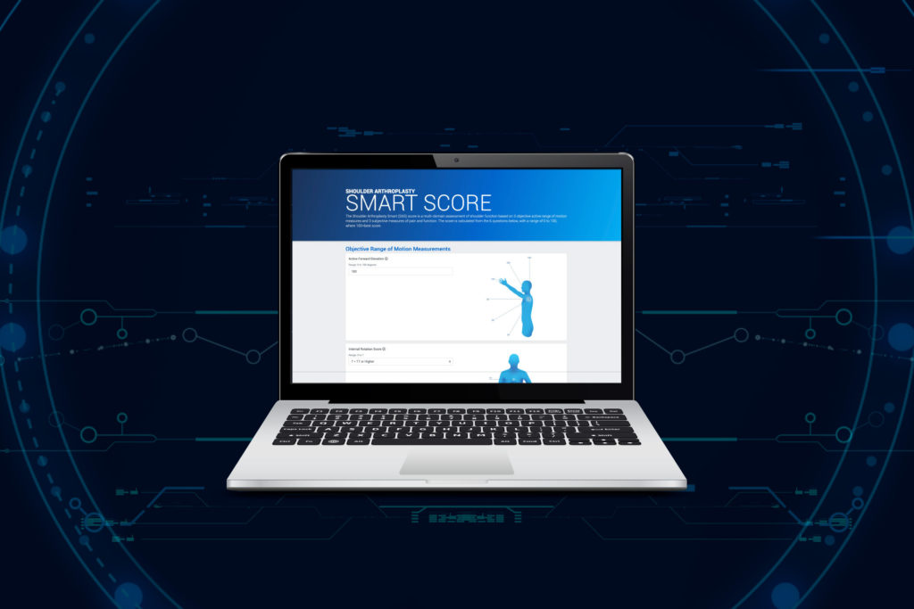 Exactech Shares Machine Learning Shoulder Replacement Metric