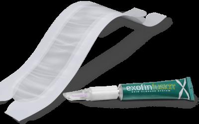 Exofin Fusion Redesign Receives FDA Approval