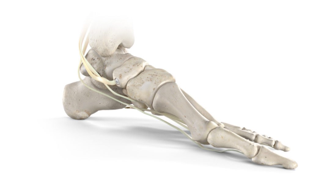 Stryker Launches New Tendon Fixation Device System